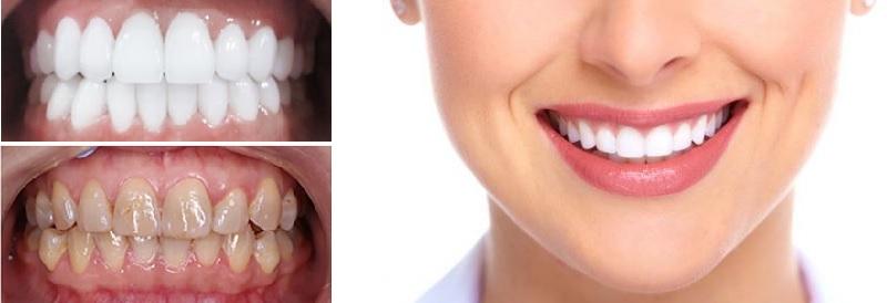 Nha khoa Trần Tuấn mang lại hàm răng đẹp khỏe mạnh cho mọi người
