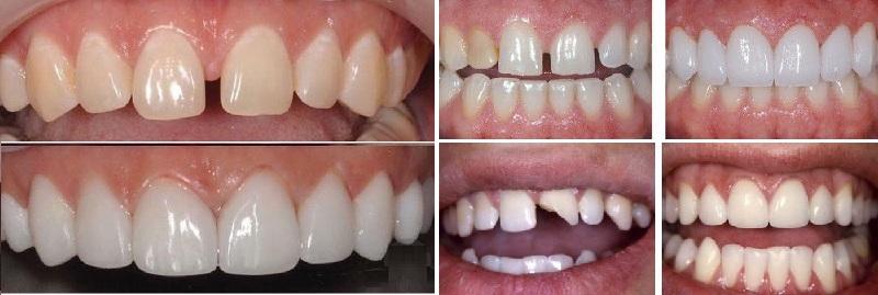 Các dịch vụ chăm sóc răng chuyên nghiệp tại phòng khám nha khoa Thùy