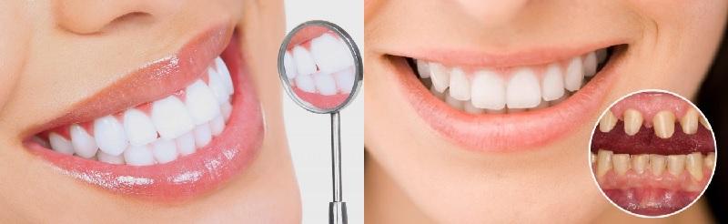 Đến với phòng khám nha Hương Nguyên để ở hữu hàm răng trắng đẹp