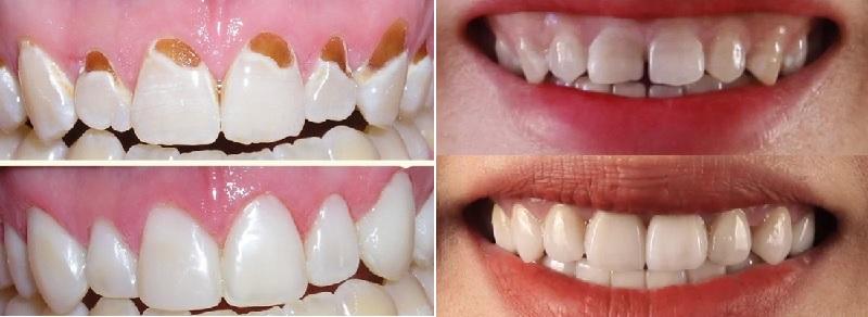 Chăm sóc răng chắc khỏe, trắng sáng tại Nha khoa Việt Đức