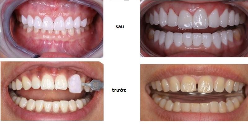 Lấy lại hàm răng trắng sáng, tự tin với phòng khám nha của bác sĩ Oanh