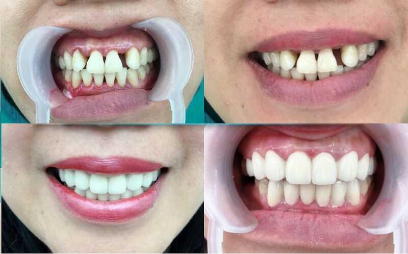 Dịch vụ trồng răng sứ thẩm mỹ tại phòng khám nha khoa ở Bắc Kạn của bác sĩ Chuyền