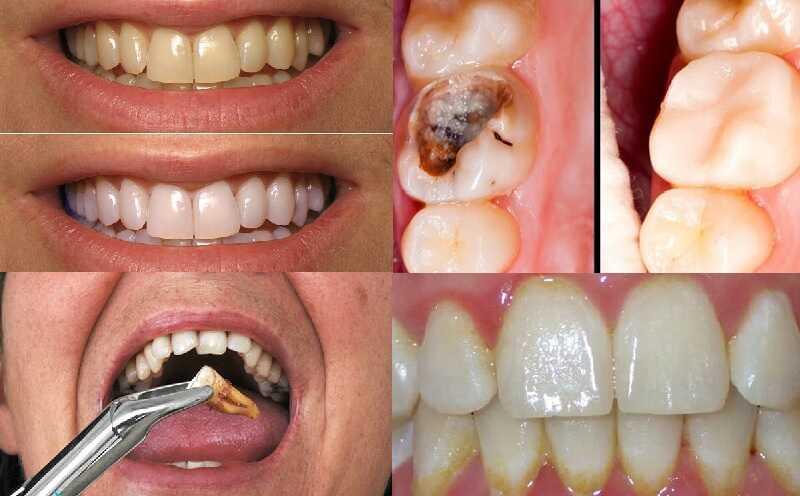 Bác sĩ Võ Thanh Qưới đang triển khai nhiều dịch vụ chăm sóc răng miệng chất lượng cao