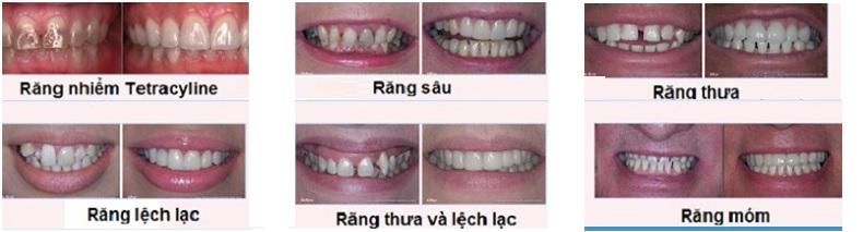 Thăm khám răng miệng tại phòng khám nha khoa ở Bạc Liêu của bác sĩ Vinh