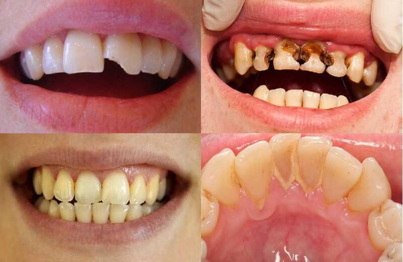 Một số dịch vụ mũi nhọn tại Răng hàm mặt Việt Mỹ