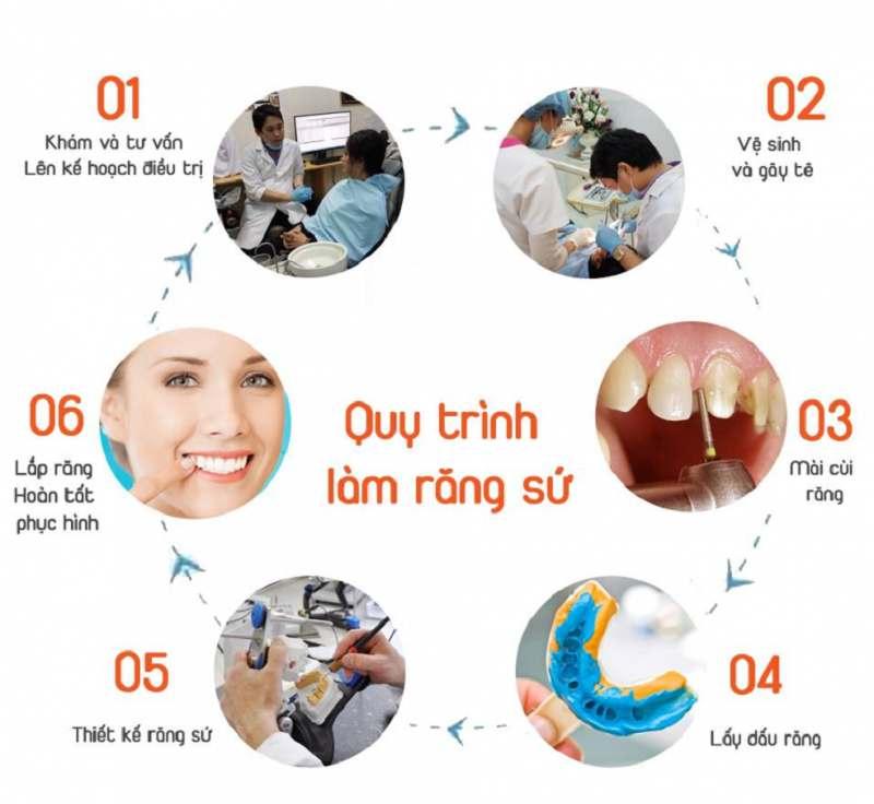 Quy trình làm răng sứ tại nha khoa ở Bình Định City Dental