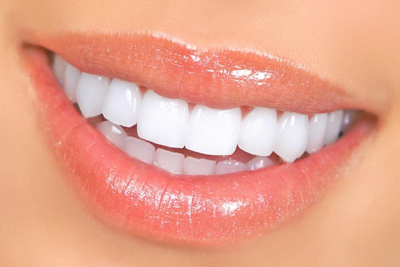Nha khoa bác sĩ Hạnh với dịch vụ làm trắng răng hiệu quả