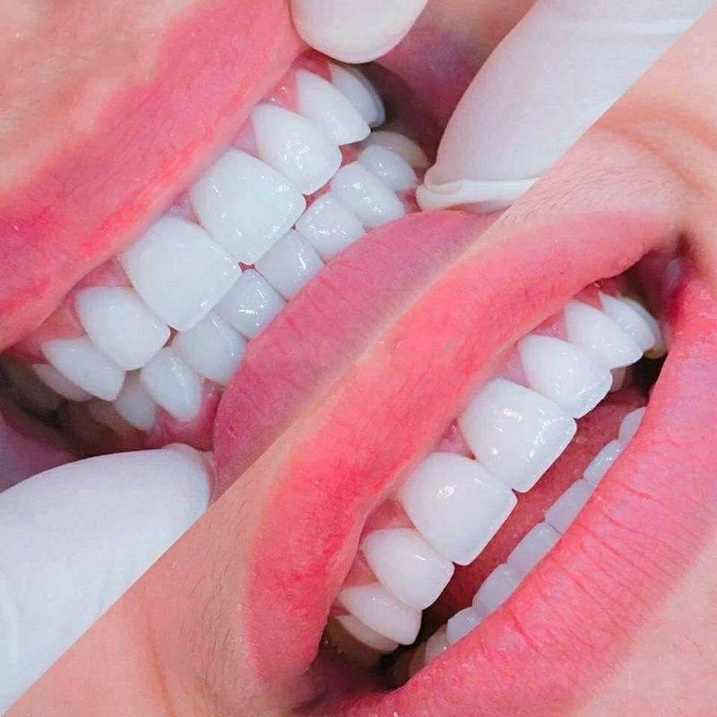 Nha khoa Quốc tế - Sài Gòn cho hàm răng trắng sáng tự nhiên