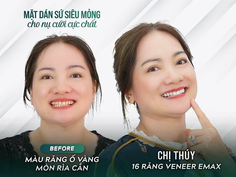 Hình ảnh chị khách hàng trước và sau khi làm răng của nha khoa Tâm Đức Smile
