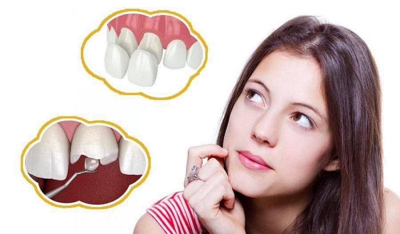 Nha khoa Sài Gòn Việt Mỹ với dịch vụ chăm sóc sức khỏe răng miệng tốt nhất