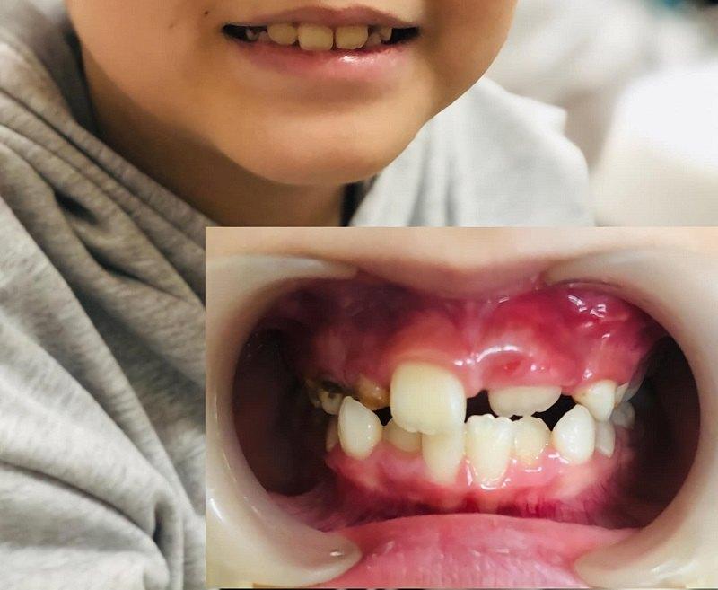 Nha khoa Quốc tế Hoàn Mỹ cho bé nụ cười tự tin