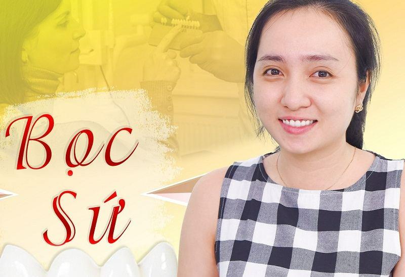 Nha khoa Sài Gòn Cà Mau với dịch vụ bọc răng sứ rất uy tín