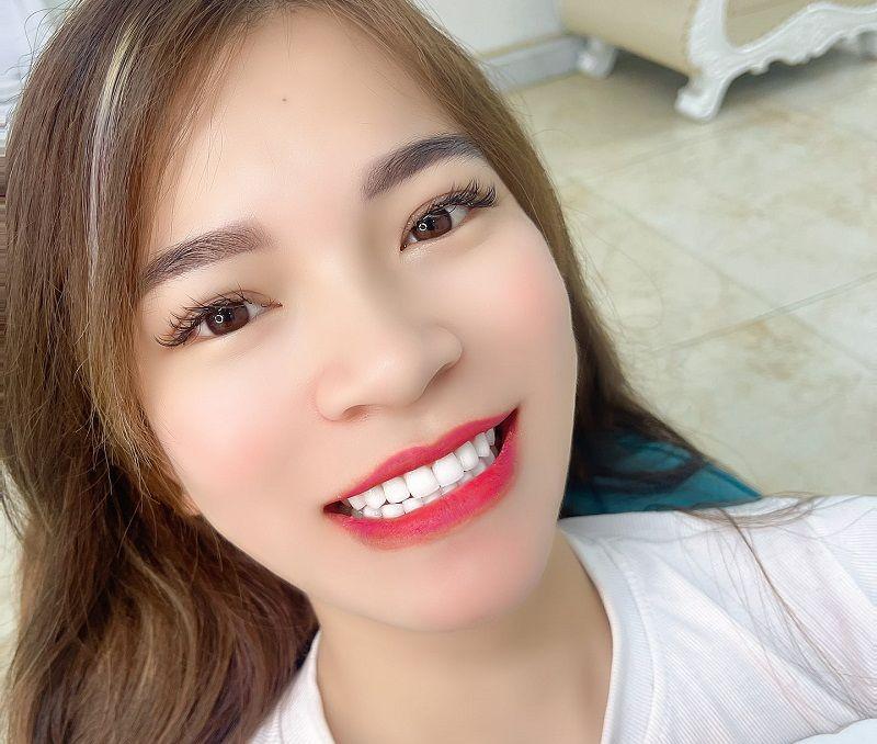 Nha khoa Á Châu của bác sĩ Trí cho hàm răng thật đẹp