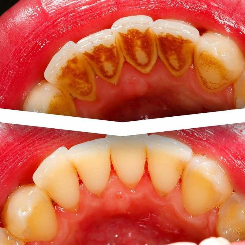 Nha khoa Hồng Phong giúp làm trắng răng, cho nụ cười tự tin