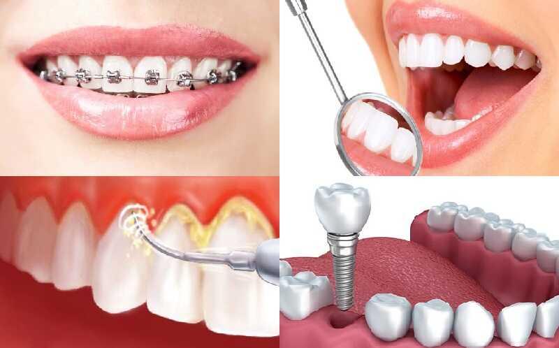 Các dịch vụ chăm sóc răng miệng điển hình tại Hà Nội Smile