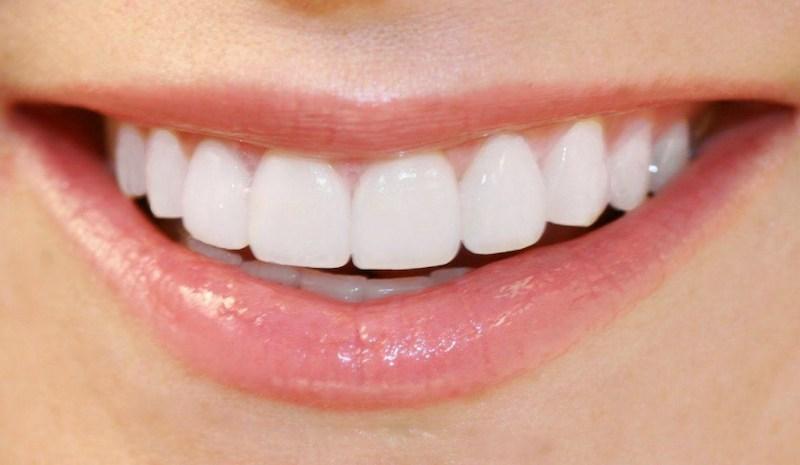 Răng cửa nằm ở vị trí chính giữa cung hàm