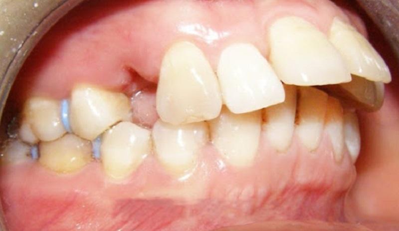 Tình trạng răng cửa bị vẩu