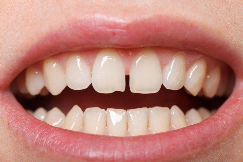 Răng thưa làm tăng nguy cơ mắc bệnh nha chu
