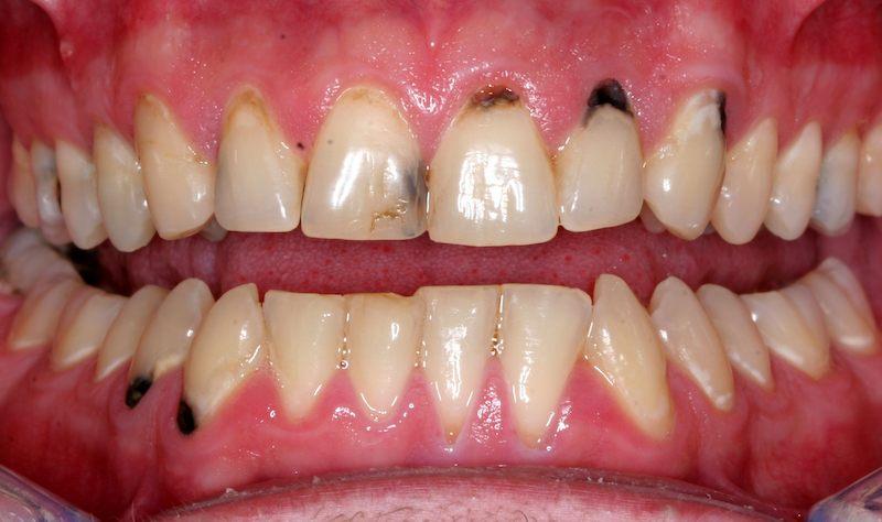 Sâu răng khiến bệnh nhân luôn tự ti khi giao tiếp
