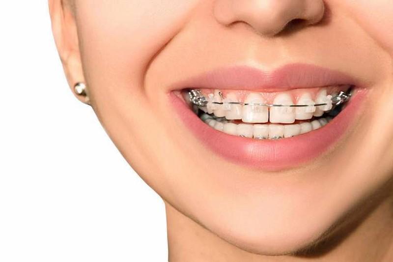Niềng răng giúp khắc phục tình trạng răng lệch lạc rất hiệu quả