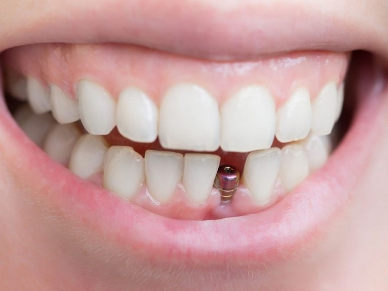Nên cấy Implant để phục hình lại chức năng ăn nhai