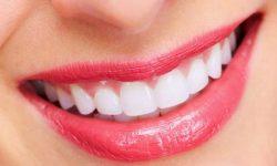 Răng cửa đều đẹp giúp bạn tự tin hơn khi giao tiếp