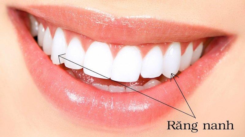 Hình ảnh răng nanh trên cung hàm