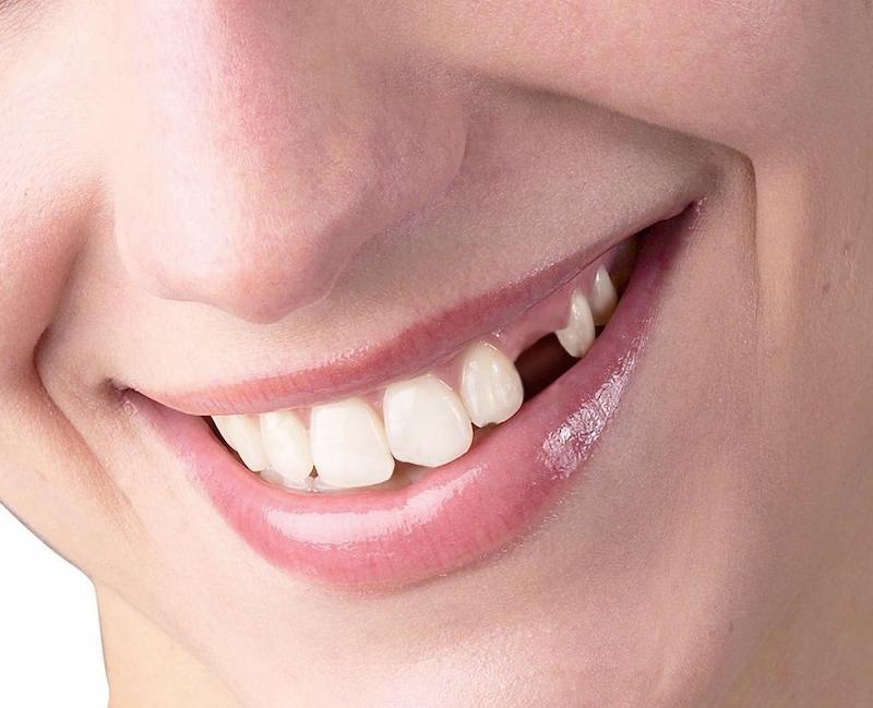 Răng số 3 bị mất lâu ngày có thể dẫn đến nhiều hệ lụy nguy hiểm