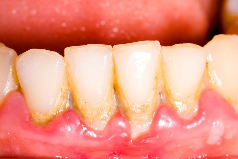 Cao răng là gì? Là những mảng bám hình thành trên răng