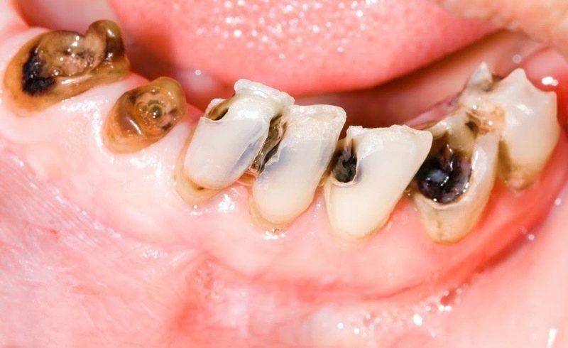 Cao răng là nguyên nhân chính gây ra bệnh sâu răng