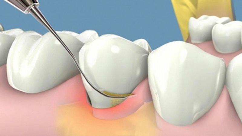 Lấy vôi răng đúng cách sẽ không gây đau đơn, khó chịu