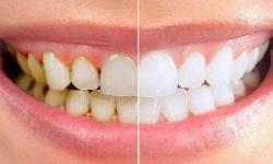 Cần tìm hiểu cao răng là gì để có biện pháp loại bỏ hợp lý