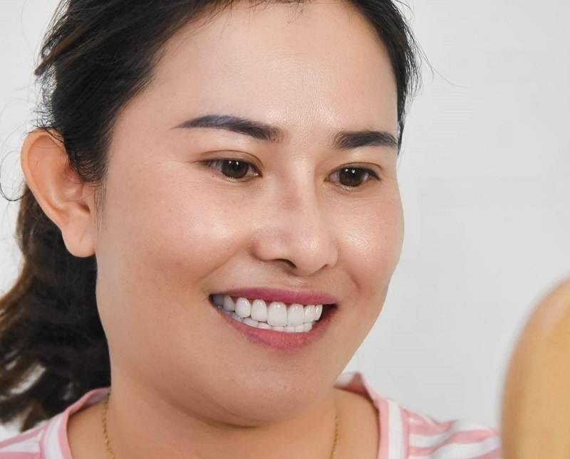 Chị khách hàng đã từng khám tăng tại nha khoa của bác sĩ Khánh
