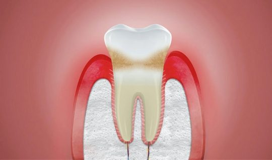 Nướu răng là gì? Là các mô mềm nằm ở vị trí chân răng