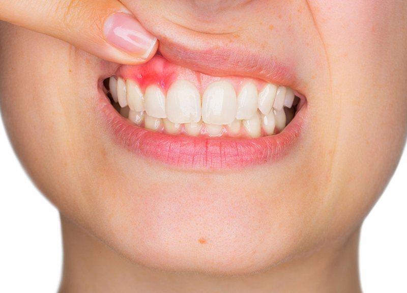 Viêm nướu răng là bệnh về nướu thường gặp nhất
