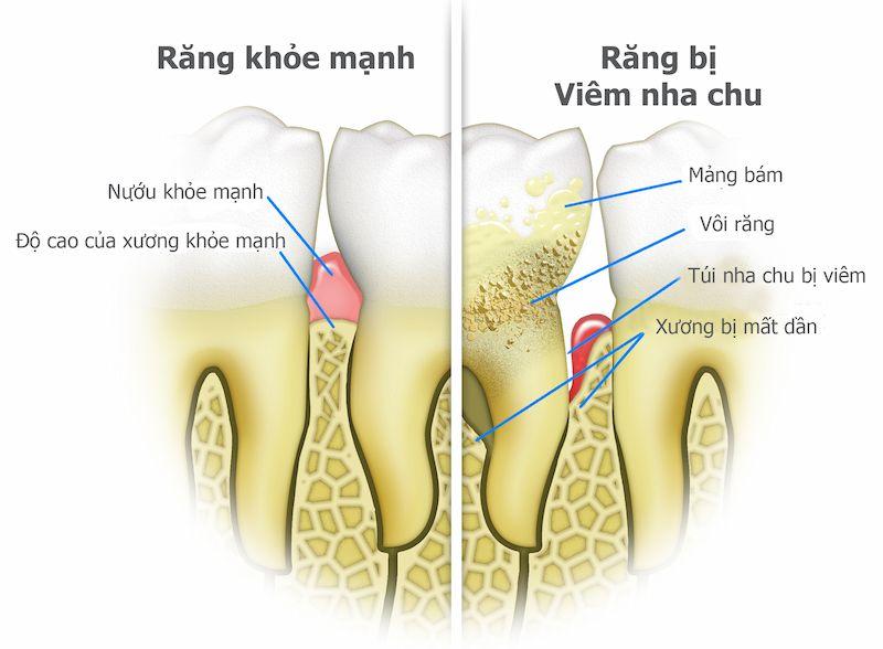 Hình ảnh nướu răng khỏe mạnh và khi bị viêm nha chu