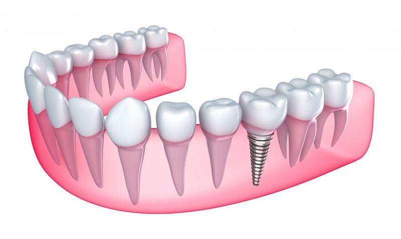 Cấy ghép Implant là phương pháp nha khoa hiện đại nhất