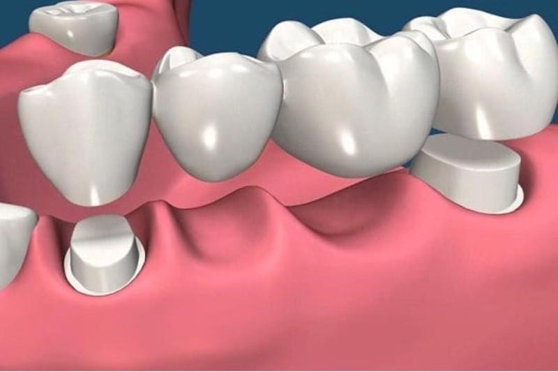 Phương pháp làm cầu răng sứ trong trường hợp mất 1 hoặc nhiều răng cạnh nhau