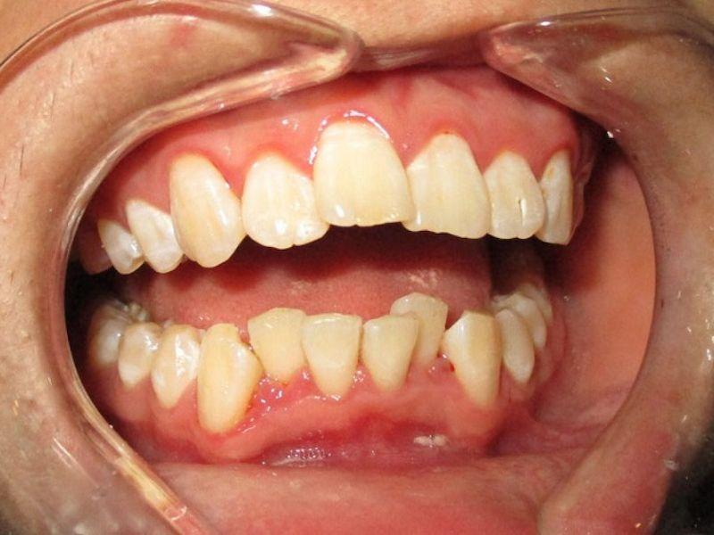 Hình ảnh răng bị khấp khểnh không đều nhau