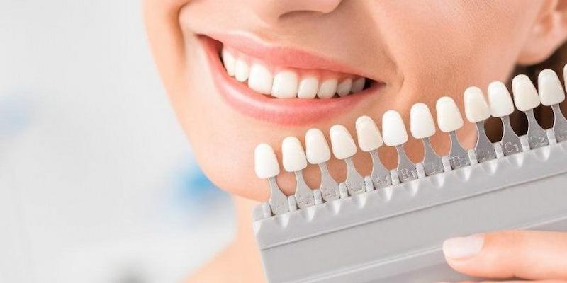 Bọc răng sứ cũng giúp răng về đúng vị trí trên cung hàm