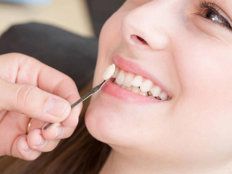 Bọc răng sứ còn giúp răng trở nên trắng sáng hơn
