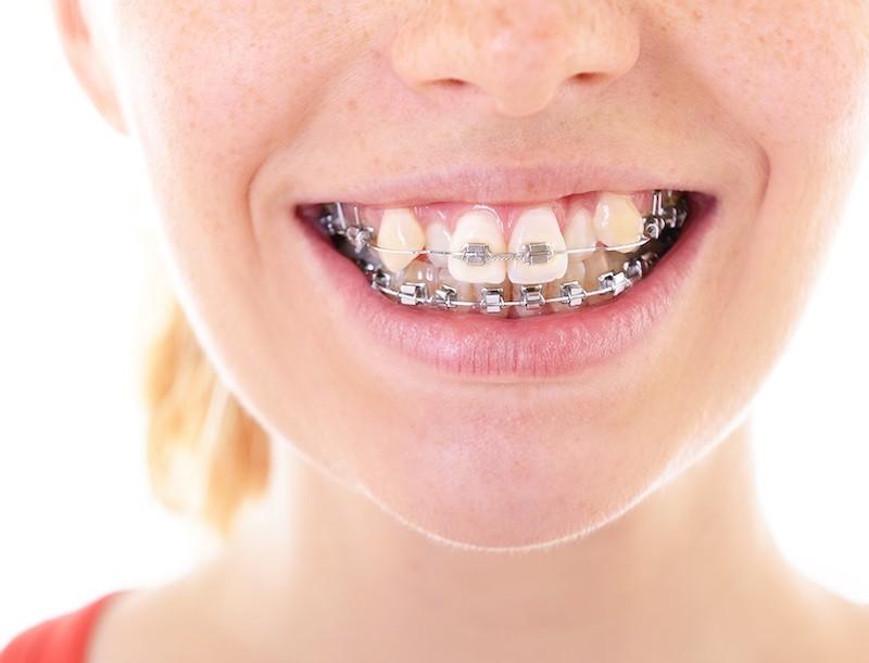 Chỉnh nha là cách điều chỉnh vẫn bảo tồn được hàm răng thật