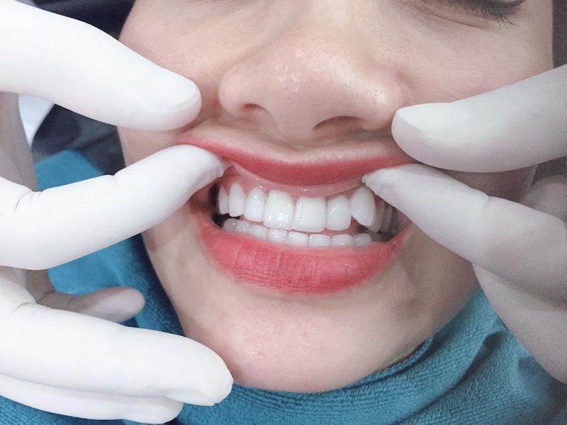 Nếu răng không bị lệch lạc quá nhiều, bạn không nhất thiết phải nhổ bỏ