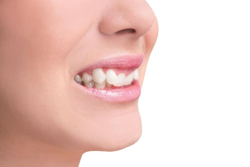 Những trường hợp răng khểnh được coi là xấu