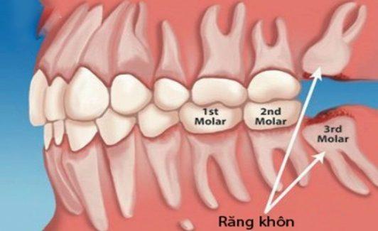 Răng khôn là răng mọc khi cung hàm đã hoàn chỉnh